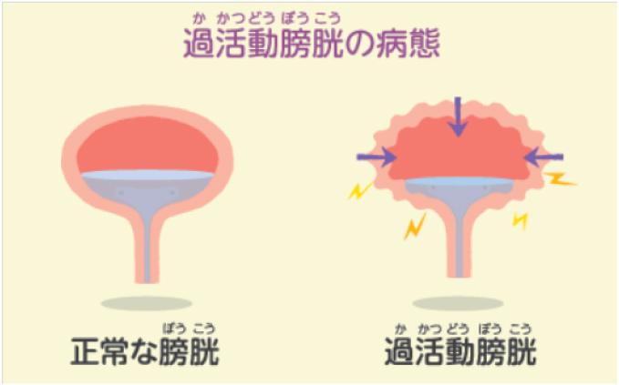 活動 薬 過 膀胱